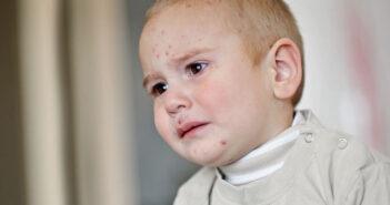 Neurodermitis bei Babys und Kindern: die richtige Hautpflege
